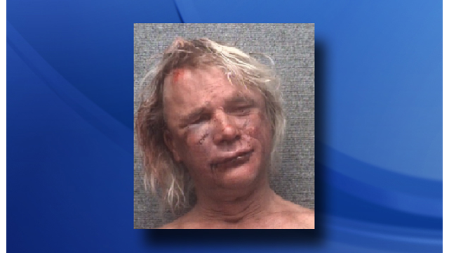 Naked man was beaten, robbed, then arrested after his birthday celebration, SC police say